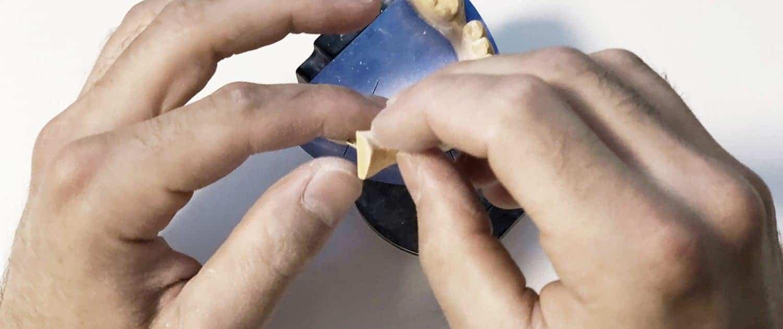 naprawa protezy dentystycznej 24h